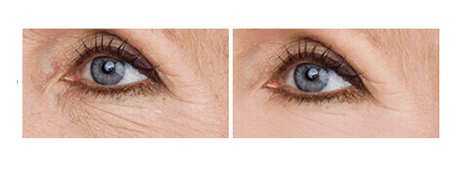 Beauty Derm - nezeljeni efekti - rezultati